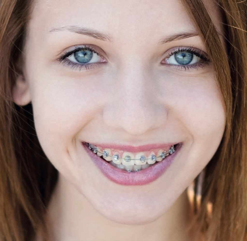 Ambulatori Gazzieri - ortodonzia tradizionale