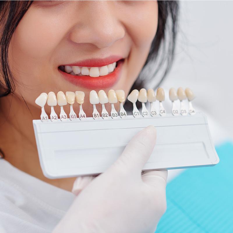 gazzieri-faccette-dentali