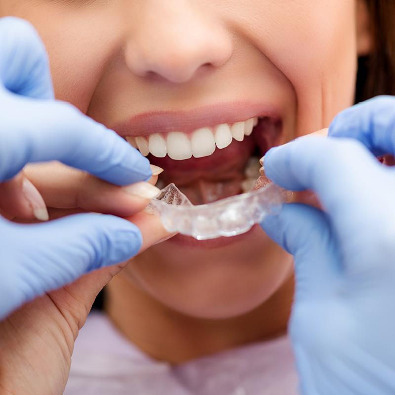 gazzieri-ortodonzia-trasparente